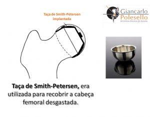 Taça de Smith-Petersen, era utilizada para recobrir a cabeça femoral desgastada
