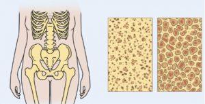 Imagem ilustrativa do osso normal e osteoporótico